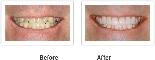 Vanguard Dental Springfield - Tooth Restoration Image 4