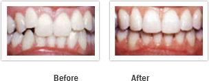 Vanguard Dental Springfield - Tooth Restoration Image 5