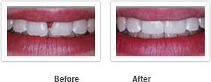 Vanguard Dental Springfield - Tooth Restoratio Image 6