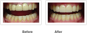 Vanguard Dental Springfield - Tooth Restoration Image 7