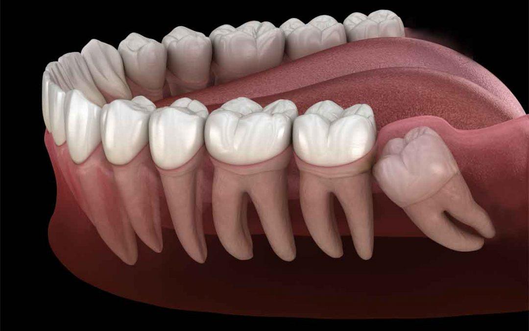 Extractions Wilbraham Ma Dentures Implants Springfield Ludlow Crowns Bridges Hampden East Longmeadow Chicopee Vanguard Dental